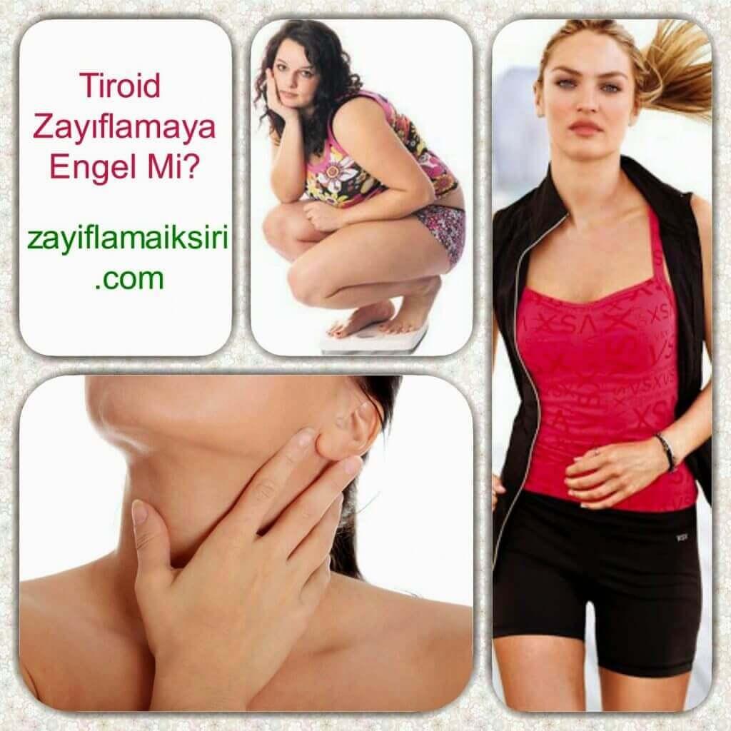 Tiroit Zayıflamayı Engeller Mi? Tiroid İlaçları Zayıflatır Mı?
